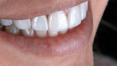 Photo of The Benefits, Uses and Preparation for Veneers